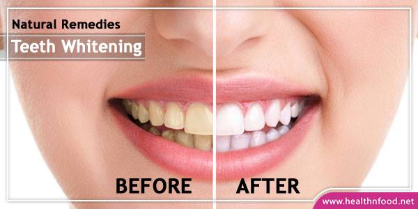 4 Natural Remedies For Teeth Whitening At Home