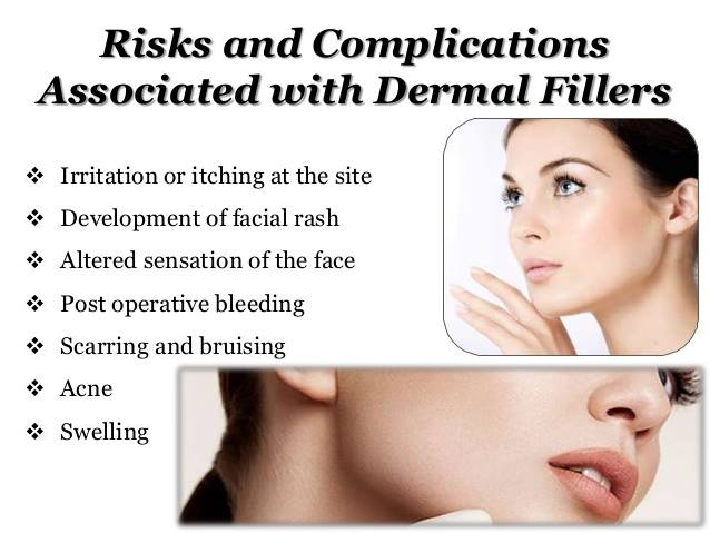 Risks and Complications Associated with Dermal Fillers
