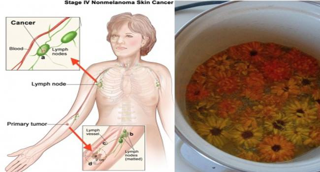 Alternative Cancer Treatment with Herbs