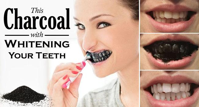 Best way to whiten my teeth