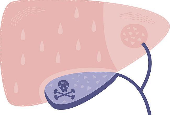 Immunotherapy Gallbladder Cancer