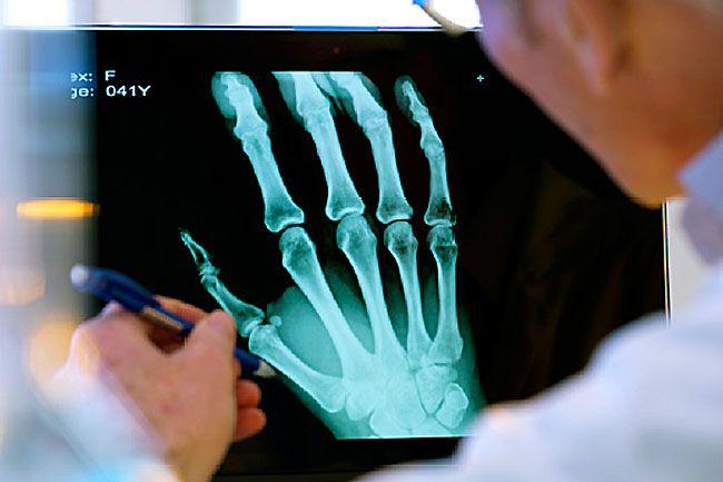 Rheumatologist Arthritis Doctor