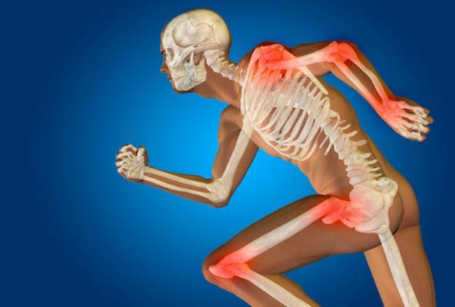 Rheumatoid Arthritis Therapy