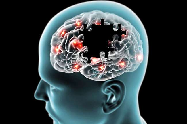 Alzheimer's Memory Care Facilities