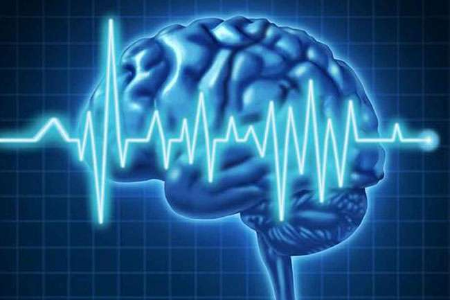 Grand Mal Seizure Brain Tumor
