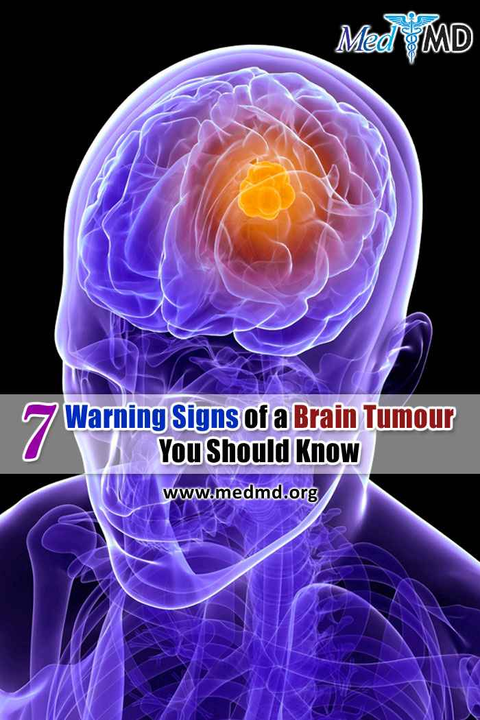 Brain Tumor Symptoms and Causes
