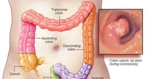 Colorectal cancer research