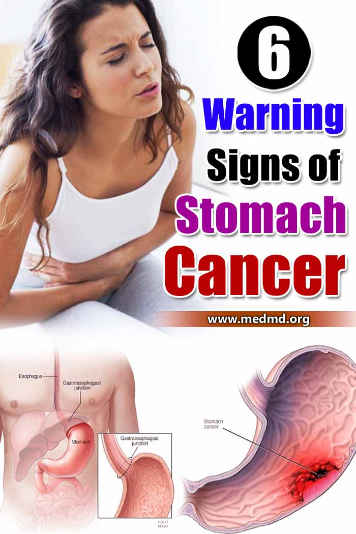 Want to pick up some healthier habits, or eating tips that will agree with your finicky stomach? #stomach #stomachcancer #cancer #health
