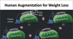 RFID Technology to Induce Weight Loss