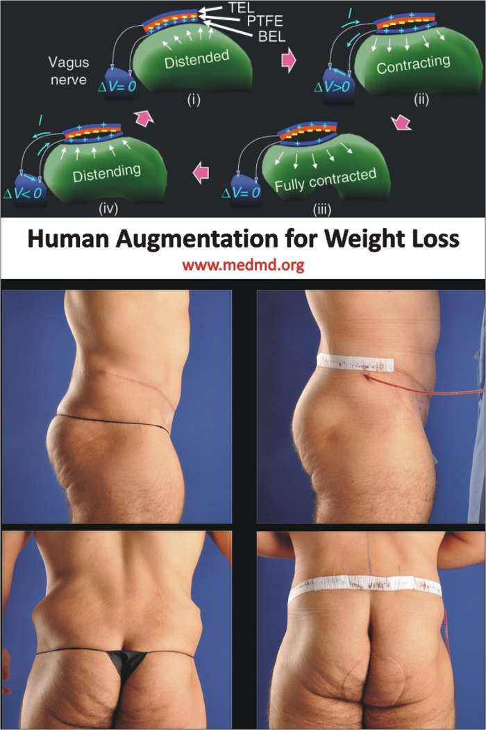 Human Augmentation for Weight Loss