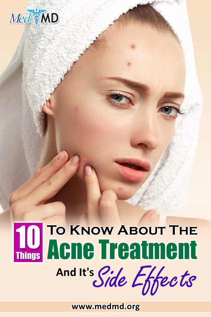 10 things a doctor wants you to know about the acne treatment