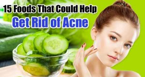 Top 15 Foods Get Rid of Acne